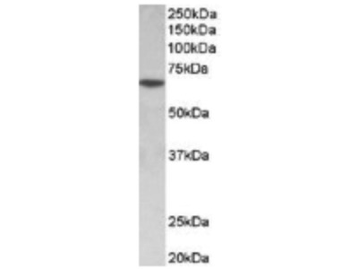 Sox11 from US Biological - works well for mouse retina