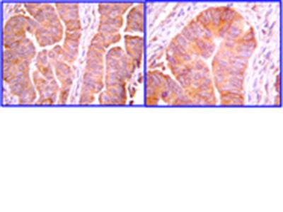 Anti-Ubiquitin Antibody, Lys63-Specific, clone Apu3, rabbit monoclonal