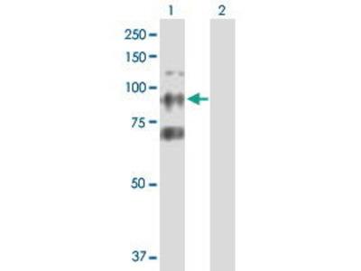 Mouse Anti-CTAGE6 Antibody