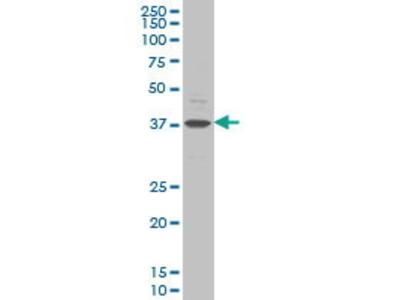 Mouse Anti-CHST11 Antibody