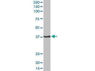 Rabbit Anti-PITX1 Antibody