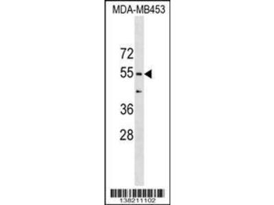 Rabbit Anti-CORO1B, CT Antibody