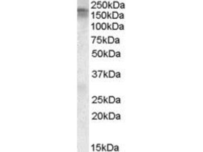 Goat Anti-CACNA1C Antibody