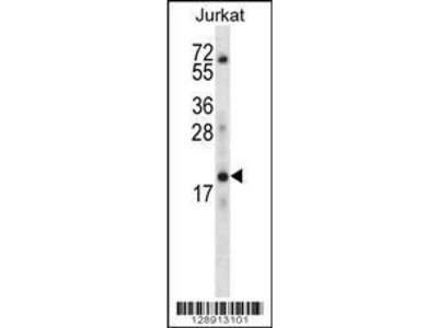 Rabbit Anti-KRTAP13-3, CT Antibody