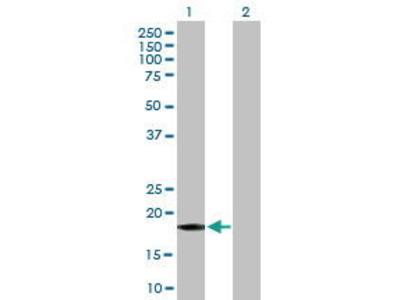 Mouse Anti-GADD45A Antibody