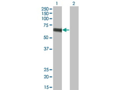 Mouse Anti-SLC5A2 Antibody
