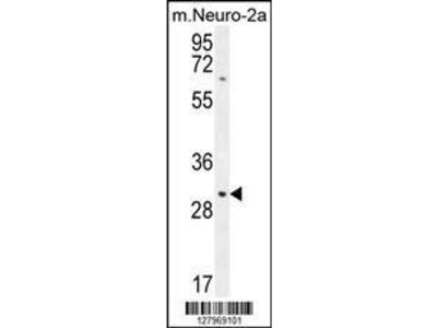 Rabbit Anti-TMEM65, NT Antibody