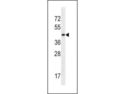 Rabbit Anti-SLC16A10, CT Antibody