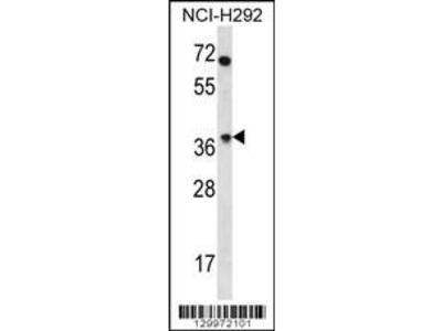 Rabbit Anti-OR4N2, NT Antibody