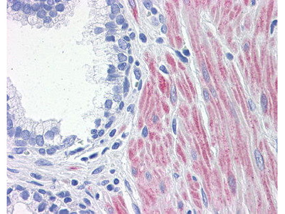 Mouse Anti-ALOX15 Antibody