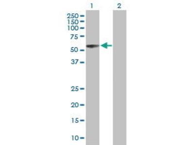 Mouse Anti-SOCS4 Antibody