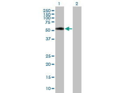 Mouse Anti-Tetratricopeptide Repeat Protein 31 Antibody