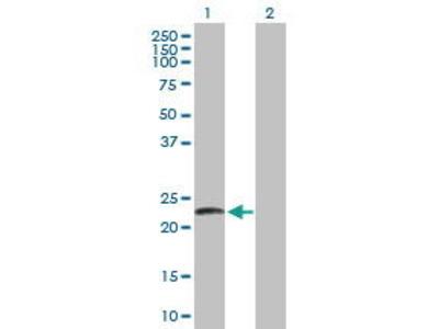Mouse Anti-LYZL2 Antibody