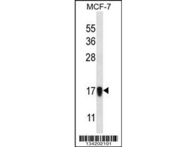 Rabbit Anti-NDUFA13, NT Antibody