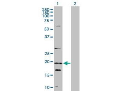 Rabbit Anti-NUDT10 Antibody