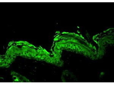 Rabbit Anti-HSPCB Antibody
