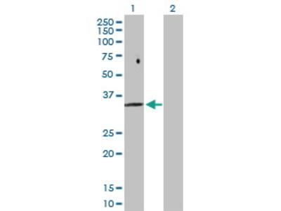 Rabbit Anti-FBP2 Antibody