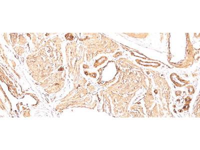 Mouse Anti-Actin, Smooth Muscle Antibody