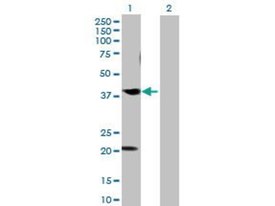 Mouse Anti-CABLES1 Antibody