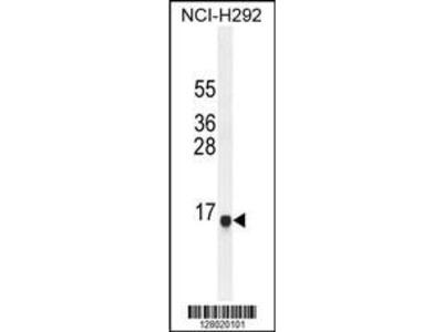 Rabbit Anti-SPAG11A, NT Antibody