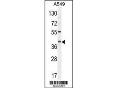 Rabbit Anti-C5AR1, ID Antibody