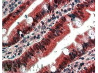 Goat Anti-FGFR1 Antibody