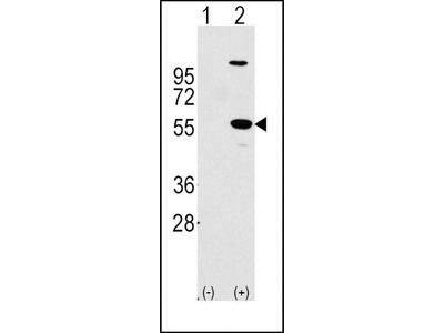 Rabbit Anti-ALDH1A1, ID Antibody
