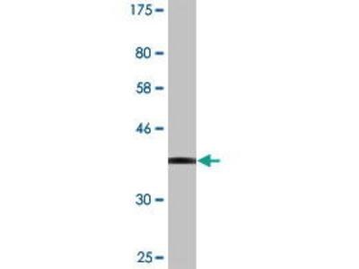 Mouse Anti-SENP5 Antibody