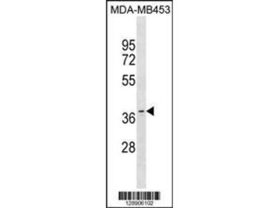 Rabbit Anti-OR11A1, CT Antibody