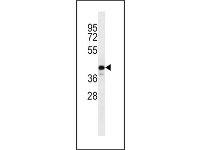 Rabbit Anti-C9orf72, CT Antibody