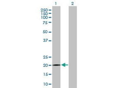 Mouse Anti-SPANXB1 Antibody