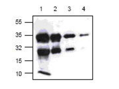 Rabbit Anti-Chorionic Gonadotropin, Human Antibody