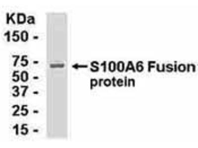 Chicken Anti-S100 Calcium Binding Protein A6 Antibody
