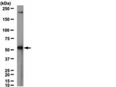 Rabbit Anti-Nicotinic Acetylcholine Receptor alpha 6 Antibody