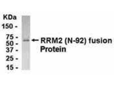 Pab Ch x human Ribonucleotide Reductase M2 Polypeptide (RRM2) antibody