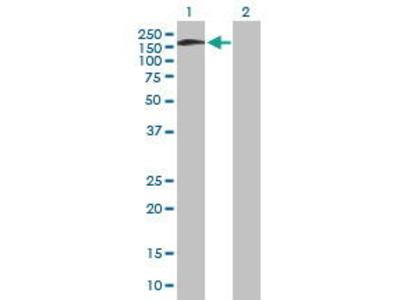 Mouse Anti-SNAP91 Antibody