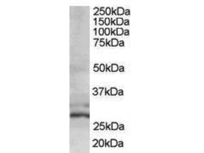 Goat Anti-TIP30 Antibody