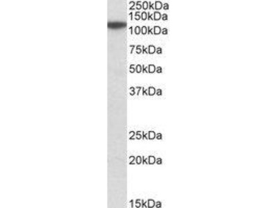 Goat Anti-MTHFD1L Antibody