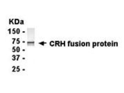 Chicken Anti-Corticotropin Releasing Factor Antibody