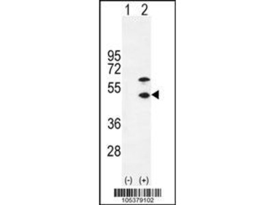 Rabbit Anti-CKMM, NT Antibody
