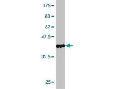 Mouse Anti-PNPLA2 Antibody