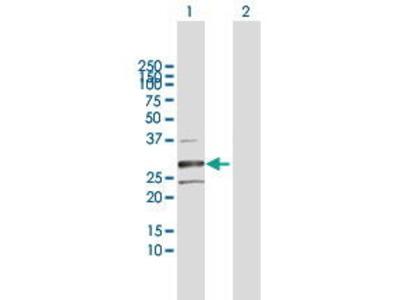 Rabbit Anti-HSD17B8 Antibody