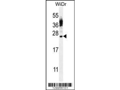 Rabbit Anti-CT45A4, ID Antibody