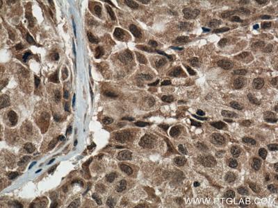 p38 MAPK antibody