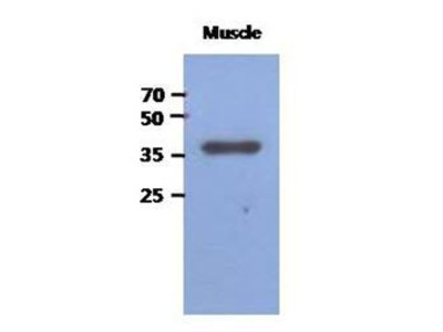 Anti-FBP2 antibody [AT1E11]