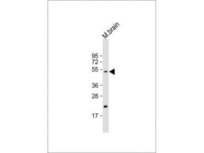 Anti-HtrA1 antibody
