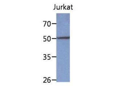 Anti-PPM1F antibody [AT6D11]