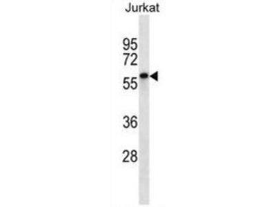 Anti-ENOX2 antibody