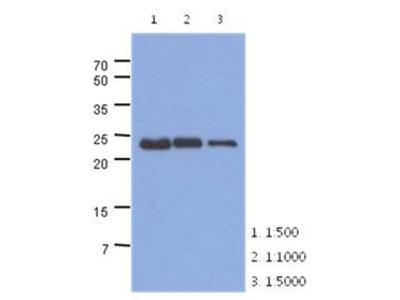 Anti-TNNI1 antibody [AT36E7]