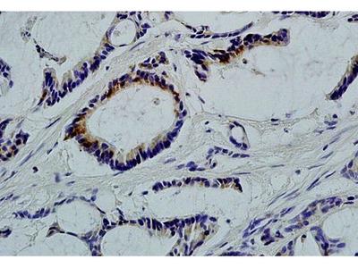Anti-LLGL1 antibody